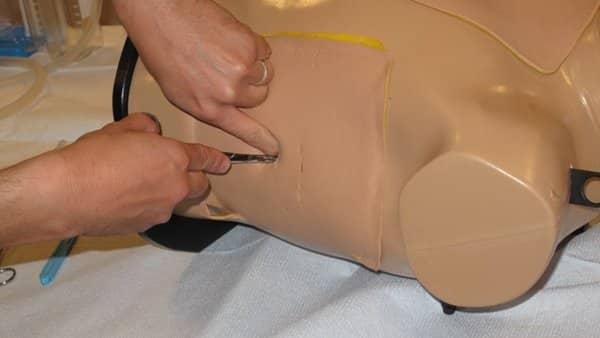 Tube Thoracostomy Insertion